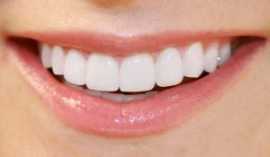 Dental Veneers – Learn What They Are & What They Do