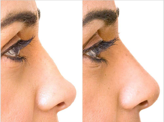 Pros and Cons Of Nose Reshaping