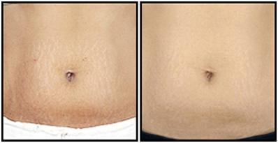 Stretch Marks Removal Ideas That Work