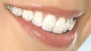 Types Of Braces - Which Is Right For You