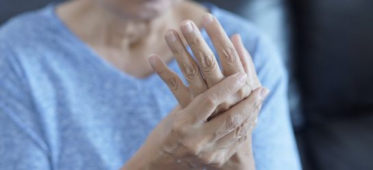 Arthritis Types Causes And Risk Factors